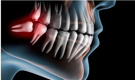 oral_maxilofacial surgery
